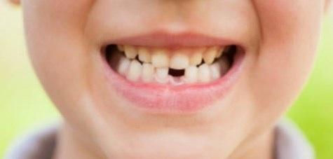 denti-bambini[1]